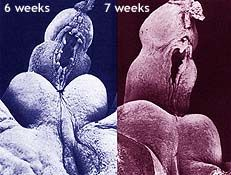 Hypospadias photos: misplaced urinary openings occur in 6-7th week after conception